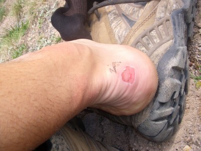 33 Miles In The Backcountry - Blistered